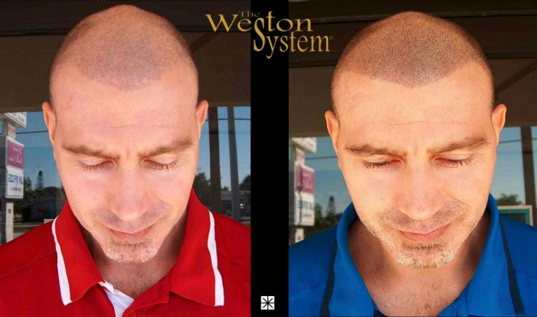 Scalp Micropigmentation Hair Loss Treatment