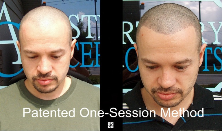 Patented Scalp Micropigmentation