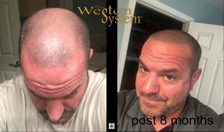 Bill Martin Hair Restoration By Weston System