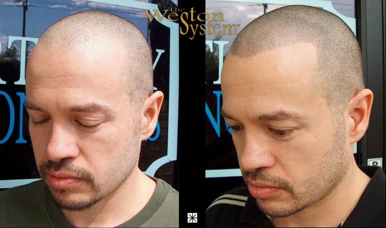 Scalp Micropigmentation Hair Restoration Florida