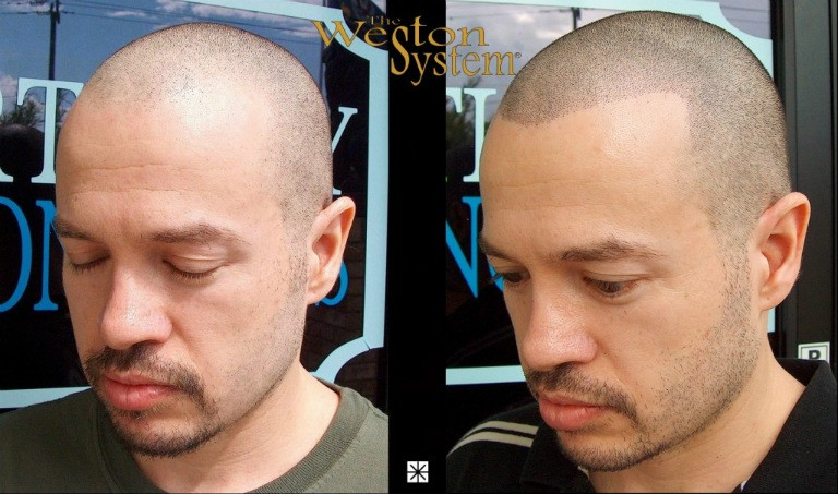 Scalp Micropigmentation Hair Restoration Florida
