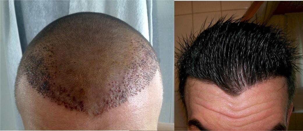 dr keser hair transplant
