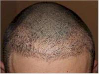 Belgium Hair Transplant FUE repair case