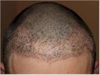 Belgium Hair Transplant FUE repair case