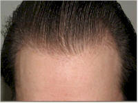 Belgium hairline restoration