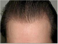 Belgium hairline restoration