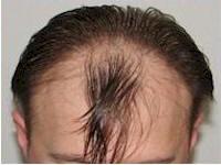 Belgium 1867 FUE grafts hair restoration