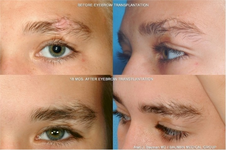 Eyebrow Eyelash Transplant Hairsite