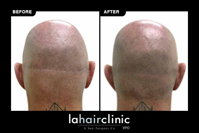 Hair Transplant Strip Scar Repair