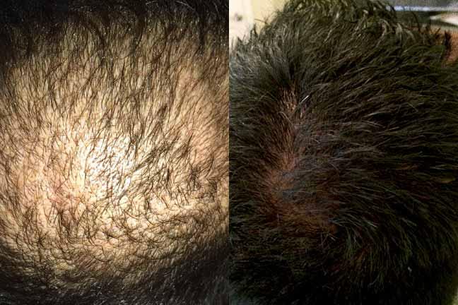 Dr. Matt Tahsini Hair Transplant Photos