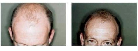 dr-klein-patient-photos4