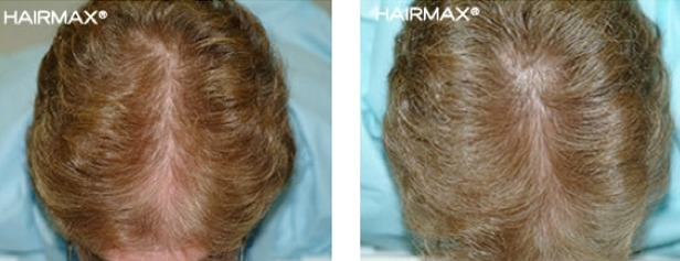 hairmax-women-result