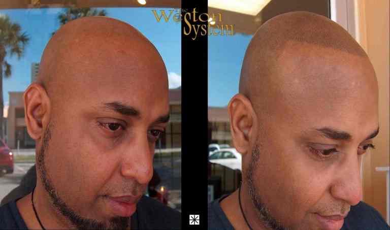 Hair Tattooing Mark Weston
