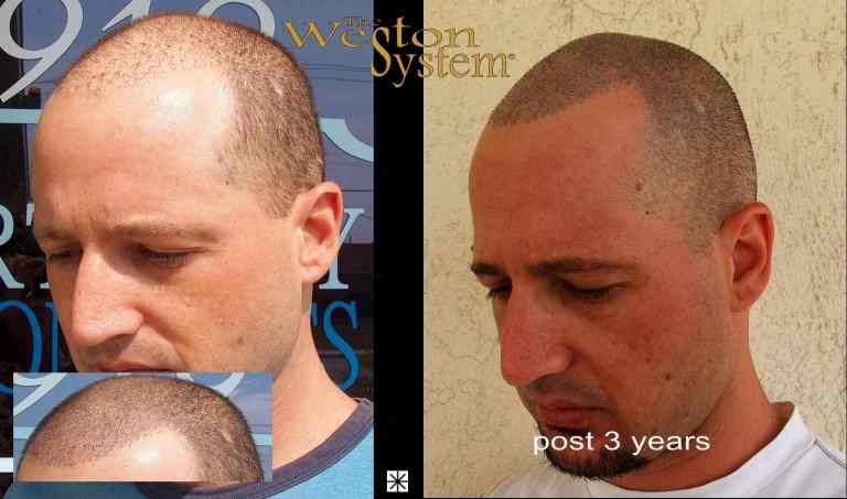 Mark Weston Scalp Micropigmentation