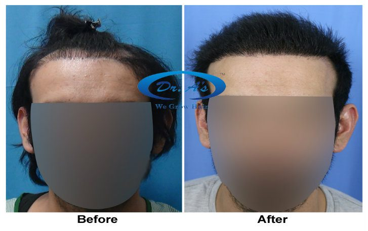 a-dr-arvind-poswal-hair-transplant-tourism-results-4