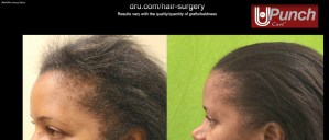 Black Female Hair Transplant