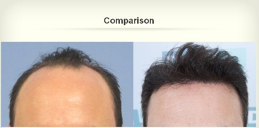 dhi hair transplant reviews