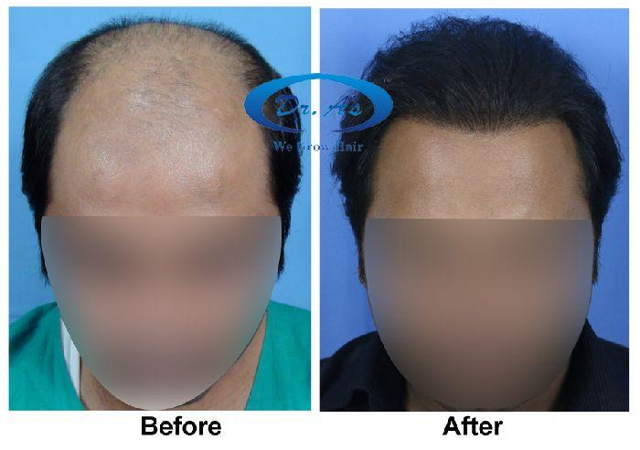 Dr Arvind Hair Transplant Result 4