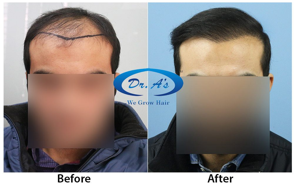 Dr Arvind Poswal Hair Transplant India 14