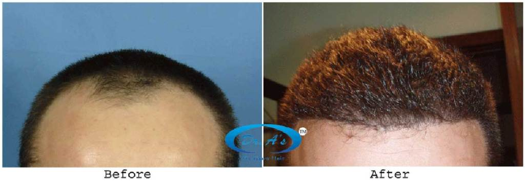 Dr Arvind Poswal Hair Transplant India 19