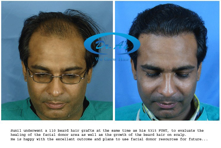 Dr Arvind Poswal Hair Transplant India 22