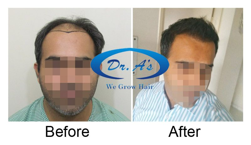 Dr Arvind Poswal Hair Transplant India 28