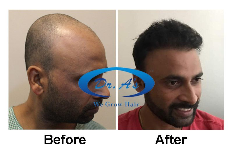 Dr Arvind Poswal Hair Transplant India 35