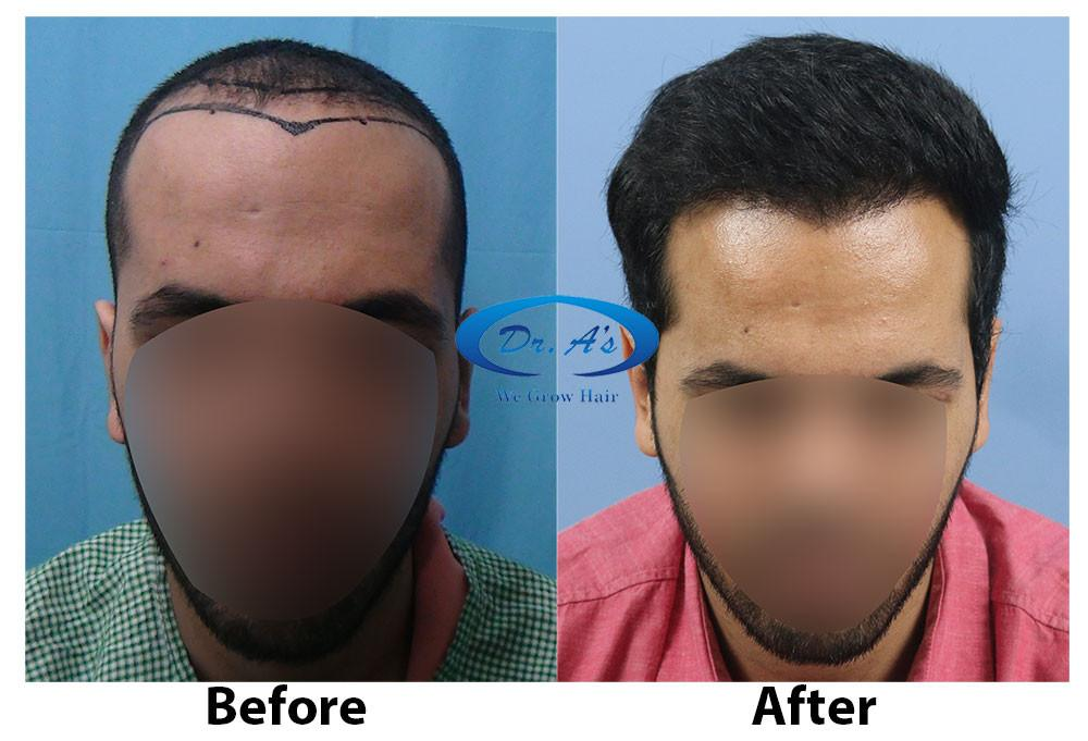 Dr Arvind Poswal Hair Transplant India 36