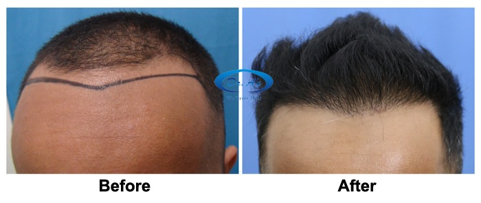 Dr Arvind Poswal Hair Transplant India 52