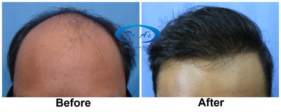 Dr Arvind Poswal Hair Transplant India 56