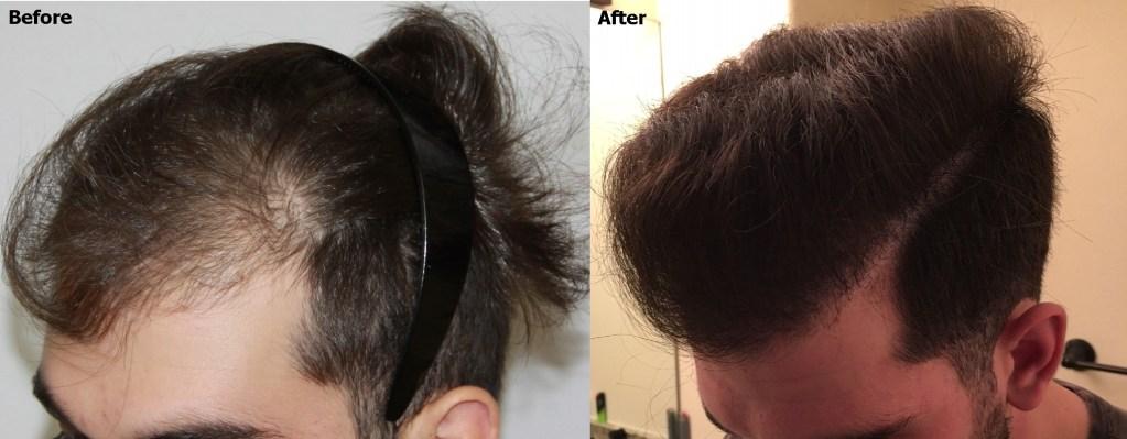 Dr Baubac Hair Transplant 32