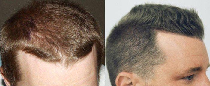 Dr Baubac Hair Transplant Results 13