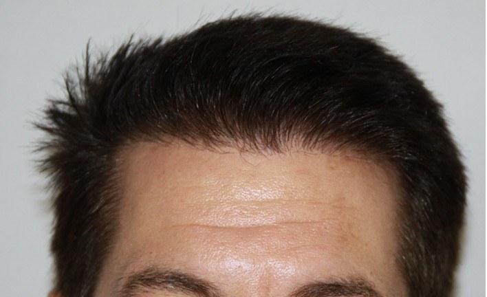Dr Baubac Hair Transplant Results 19
