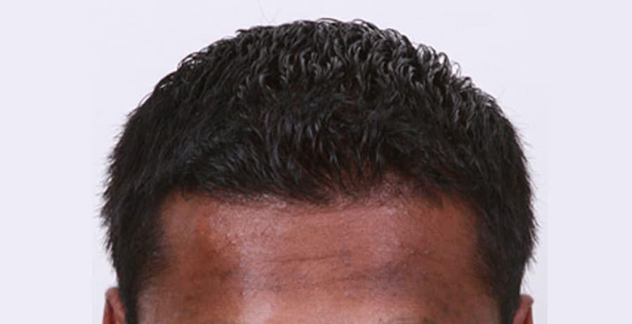 Dr Baubac Hair Transplant Results 5