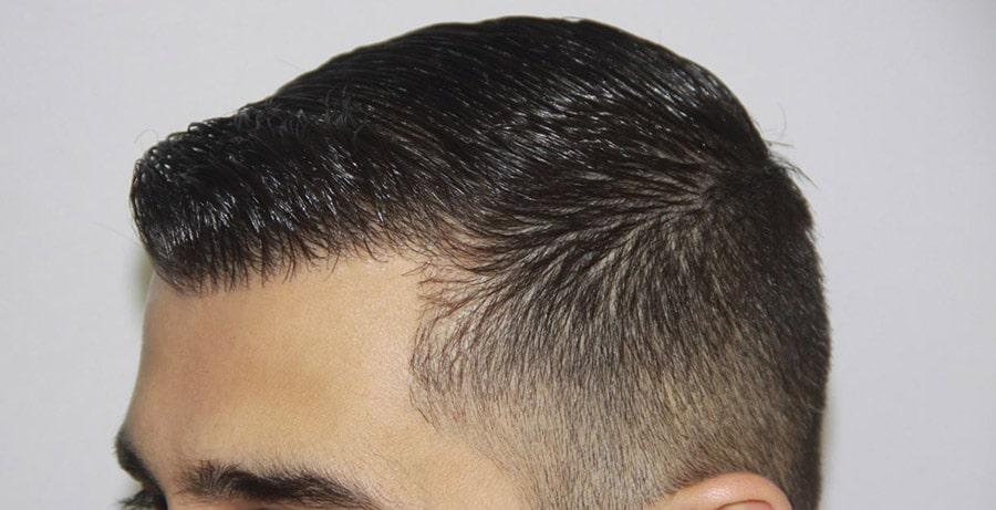 Dr Baubac Hair Transplant Results 8
