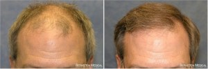 Dr Bernstein Hair Transplant Reviews New York