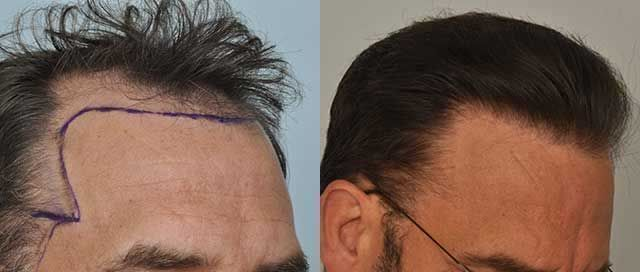 Dr Cole Hair Transplant Result 11