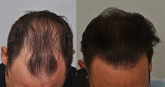 Dr Cole Hair Transplant Result 12