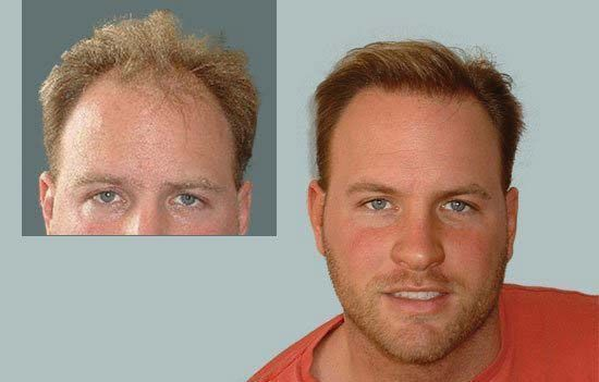 Dr Cole Hair Transplant Result 2