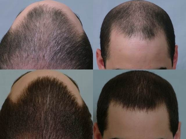 Dr Cole Hair Transplant Result 23