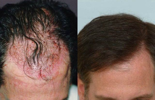 Dr Cole Hair Transplant Result 24