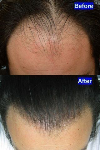 Dr Cole Hair Transplant Result 27