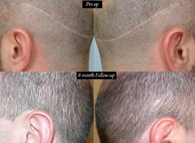 Dr Cole Hair Transplant Result 29