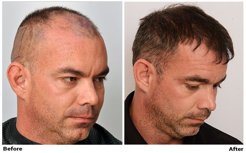 Dr Cole Hair Transplant Result 6