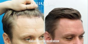 Dr Hasson Fue 1310 grafts