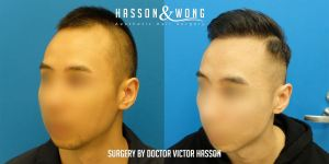 Dr Hasson Fue 2274 grafts