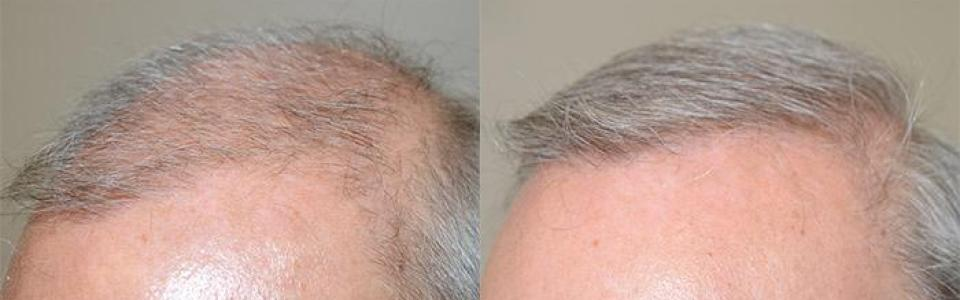 dr jeffrey hair transplant reviews miami new york