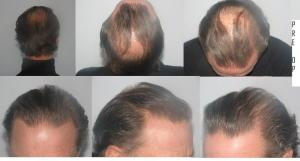 dr mwamba hair transplant belgium