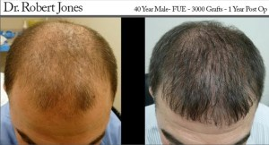 dr robert jones hair transplant reviews toronto