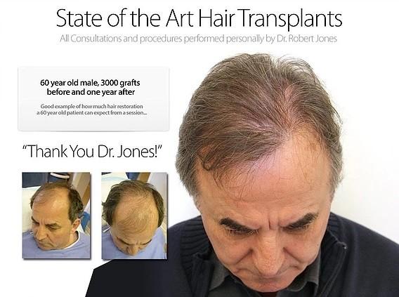 Dr Robert Jones Hair Transplant Reviews Toronto 11 -7419